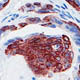 Gene family proven to suppress prostrate cancer